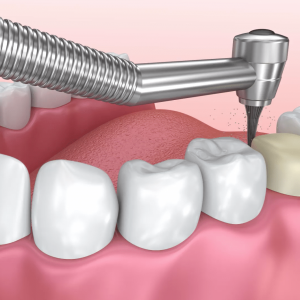 What Mistakes You Should Avoid When Going For Dental Crowns