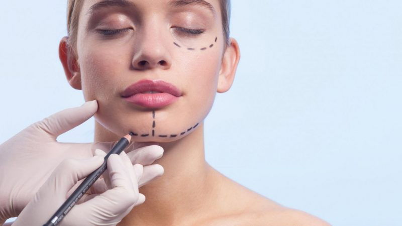 Things to Know About Plastic Surgeries